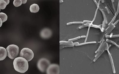 他の乳酸菌との決定的な違い